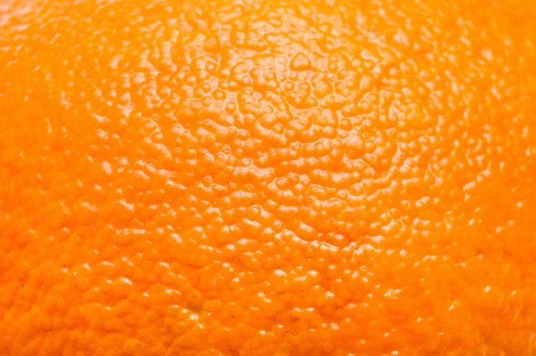 cellulite_termografia_contatto_diagnosi_nutrizionista_milano_papavasileiou