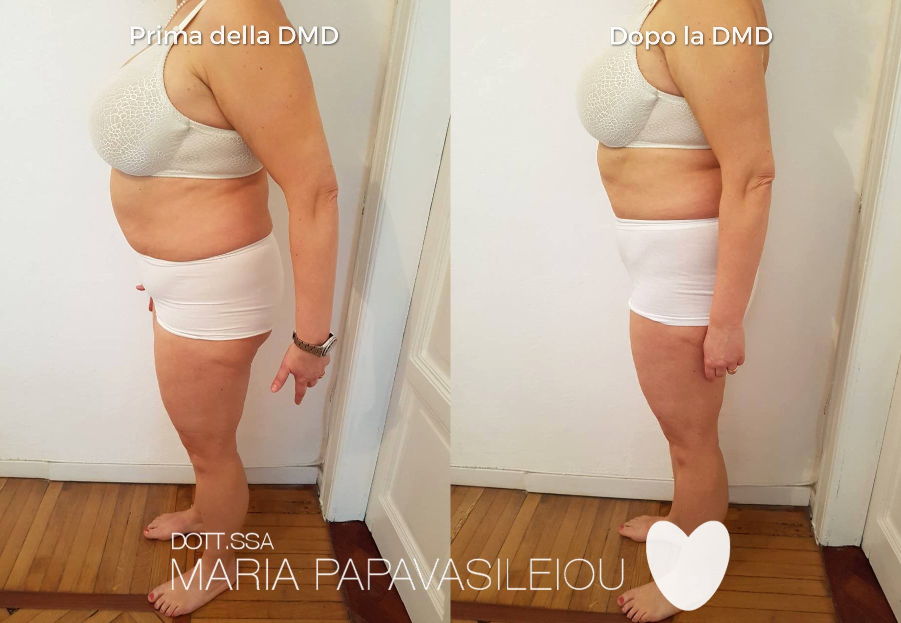 Dieta Personalizzata - Nutrizionista e dietista Dott.ssa Maria Papavasileiou