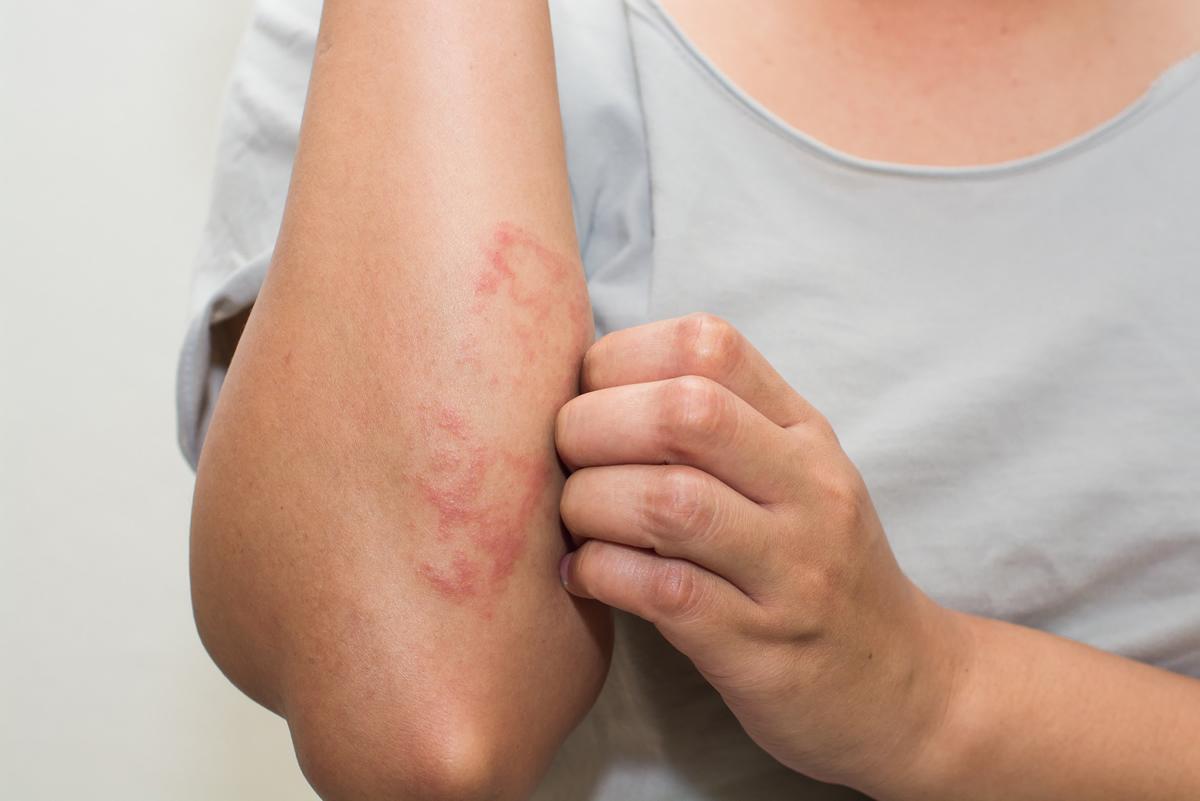Dermatite atopica nutrizionista Milano dieta